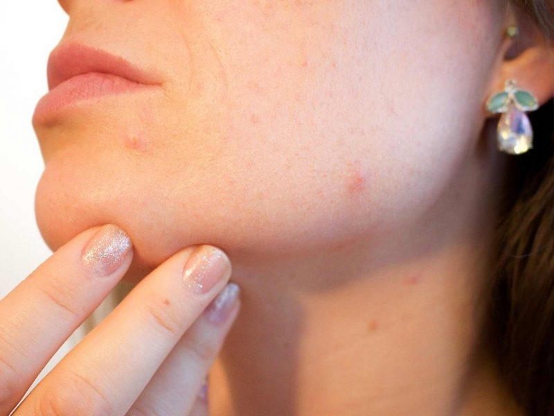 Get rid of spots fast and get rid of blemishes