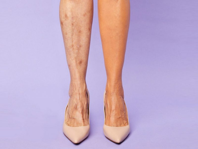 Shape Tape concealer legs varicose veins