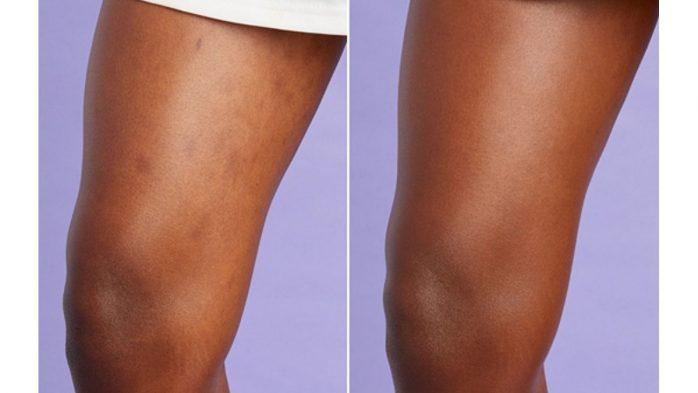 Shape Tape leg concealer