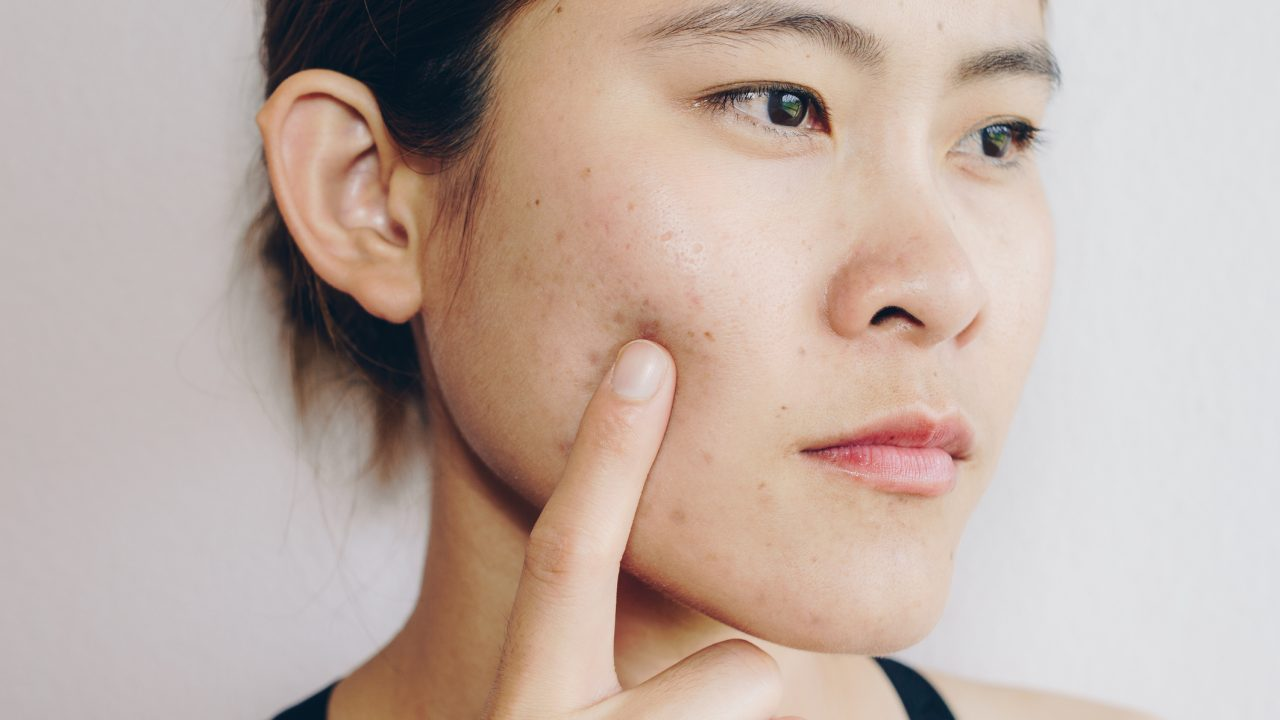 what causes acne and how to get rid of acne
