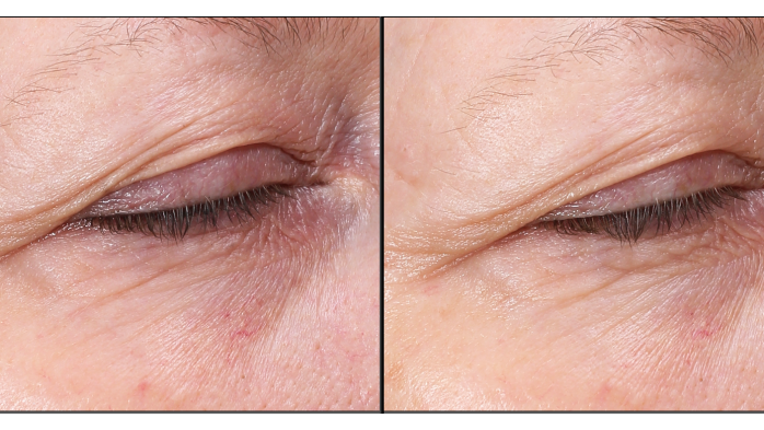 Avon Anew Skin Rest Plumping Shots before and after photos
