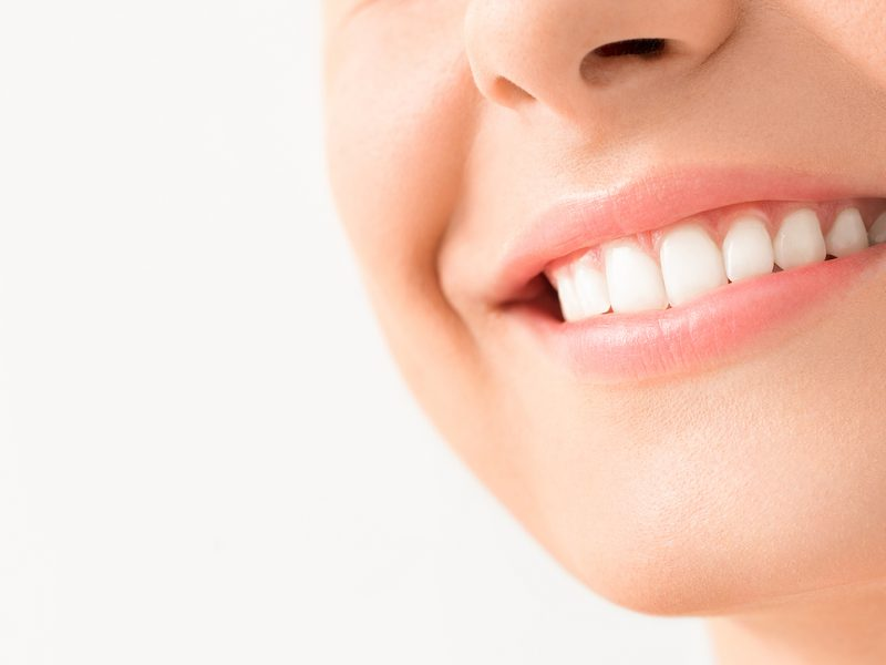 Teeth whitening: How does it work, how much does it cost and is it safe