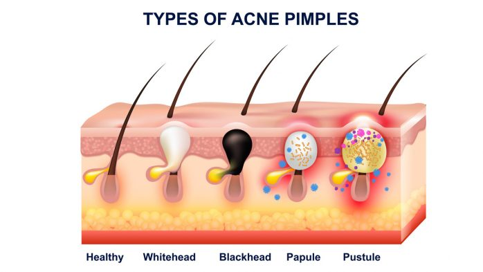 What are blackheads vs whiteheads and acne