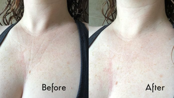 Anew Skin Reset Plumping Shots review before and after chest