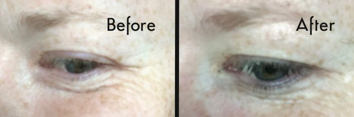 Avon Plumping Shots review before and after eye