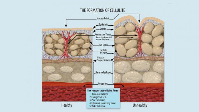 Cellulite causes