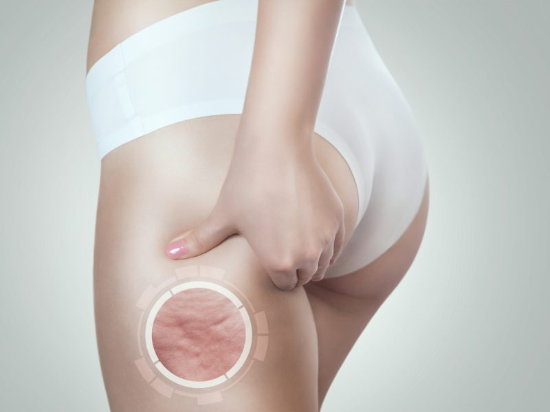 What causes cellulite about how to get rid of cellulite