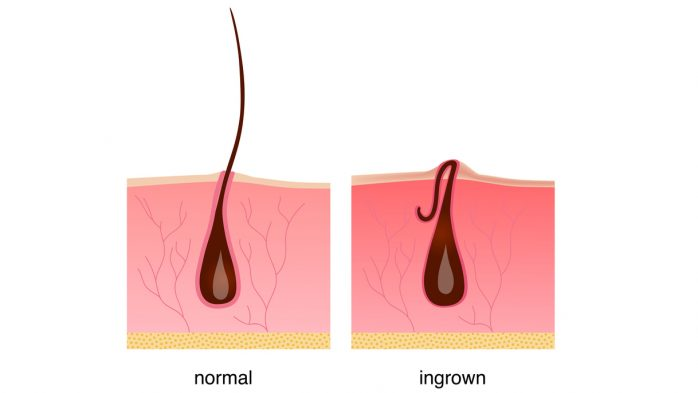 Ingrown hair after shaving, cream or epilator. Anatomy infographics of hair vector illustration. Beautiful legs.