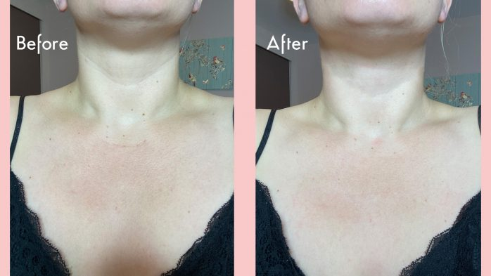 Oia Skin reviews before and after